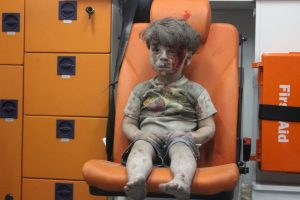 Omran, a Syrian boy, awaits treatment. (Mahmoud Rslan/Agence France-Presse via Getty Images)